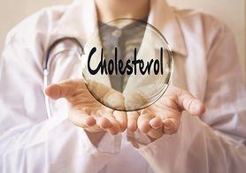 Dolegliwości, których przyczyną może być podwyższony cholesterol (WIDEO)