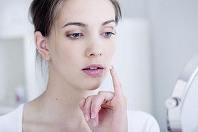 Zimno na ustach - co wywołuje opryszczkę, objawy, profilaktyka, leczenie