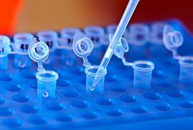 Cytomegalia - przyczyny, objawy, leczenie. Cytomegalia w ciąży