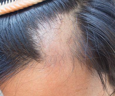 Łysienie telogenowe charakteryzuje się nagłym wypadaniem włosów z różnych części skóry głowy.