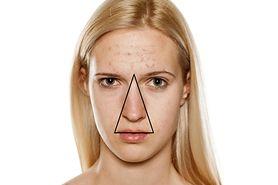 Trójkąt śmierci na twarzy. Wyjaśniamy, gdzie się znajduje