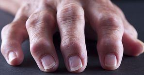Nasila obrzęk i bol stawów. Wyeliminuj z diety jak najszybciej