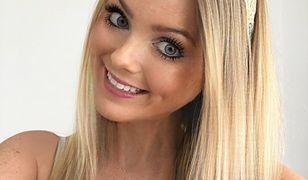 30-letnia Jemma Levy choruje na zespół Ehlersa-Danlosa