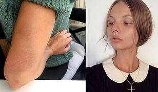 Magdalena Frąckowiak została napadnięta
