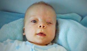 10-miesięczny Szymon ma poważną wadę serca. Potrzebna pomoc i fundusze na operację w Niemczech