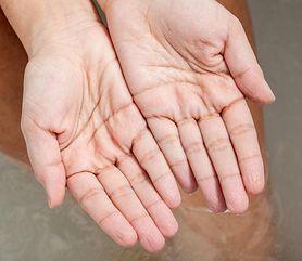 Objawy chorego serca widoczne na skórze (WIDEO)