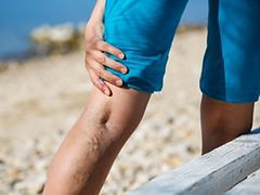 Żylaki – lepiej zapobiegać niż leczyć