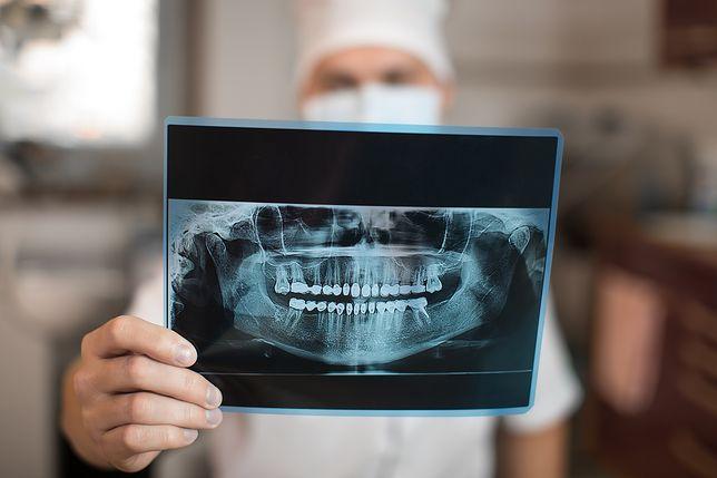 Zęby kryją wiele życiowych tajemnic. Wyniki badań naukowców