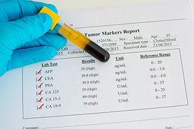 Markery nowotworowe - charakterystyka, przebieg badania, interpretacja wyników