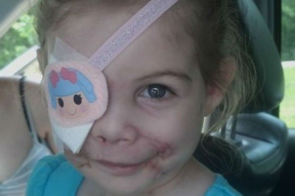 3-latka przeżyła atak pitbulli. Teraz wyrzucili ją z KFC, bo... straszy