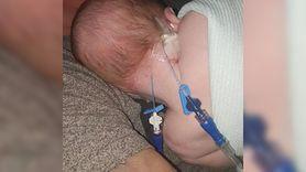 Dziwna wysypka na główce dziecka. Okazała się groźna (WIDEO)