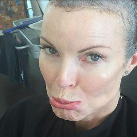 Marcia Cross wygrała z rakiem odbytu. Aktorka przyznała się fanom do choroby