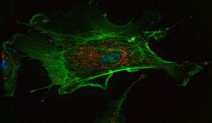 Algorytm odkrył nowe geny. To one odpowiadają za nowotwory