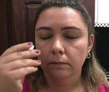 Ta kobieta ma niespotykaną przypadłość. Z jej oczu wypływają białe płytki
