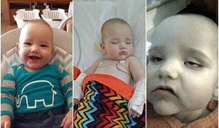 Wzruszający apel matki, której syn zachorował na zapalenie opon mózgowych przez kontakt z.. wózkiem sklepowym