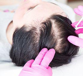 Badanie hormonów tarczycy w kierunku łysienia