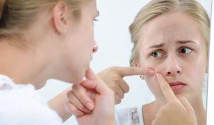 Pryszcze podskórne mogą być poważnym problemem