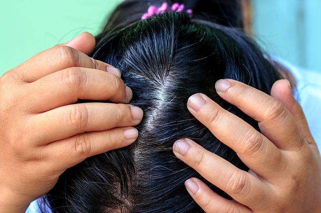 Siwienie dotyka wielu młodych kobiet.