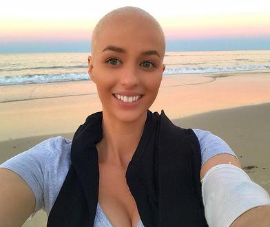 24-latka udokumentowała swoją walkę z rakiem. Pierwsze tygodnie były koszmarem.