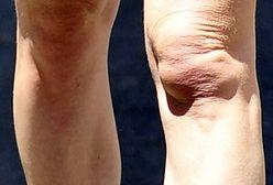 Kirsten Dunst: Mało apetyczne kolana 31-letniej gwiazdy