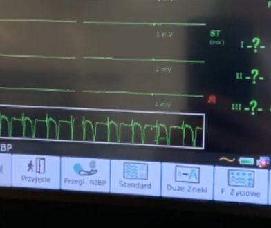 Sonda służy do odczytywania sygnału EKG bezpośrednio z powierzchni serca