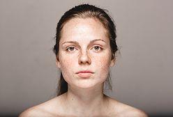 Blizny potrądzikowe – sprawdź, jak usunąć blizny po trądziku