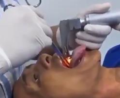 Lekarze wyciągnęli mu to z gardła. Nie mogli uwierzyć własnym oczom