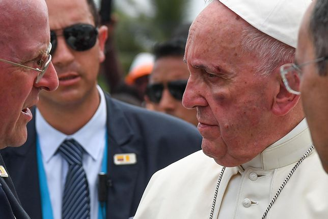 """Incydent podczas wizyty papieża w Kolumbii. """"Obrażenia na twarzy Franciszka"""""""