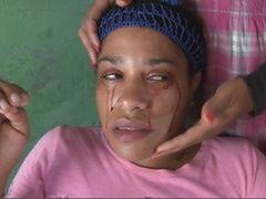 Ta kobieta płacze... krwawymi łzami