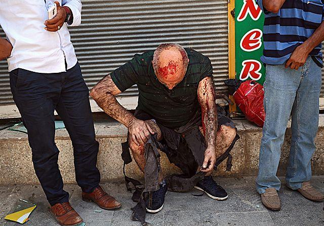 30 zabitych, ponad stu rannych. Zamach w Turcji