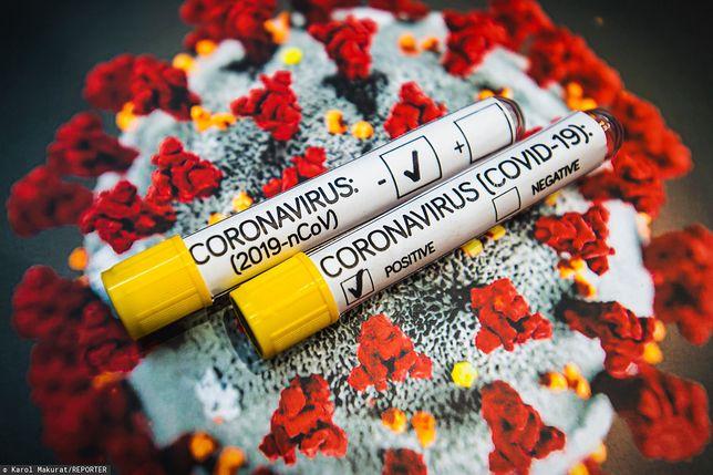 Koronawirus zmutował w 3 różne typy SARS-CoV-2. Nowe wyniki badań