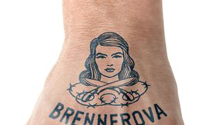 Brennerova