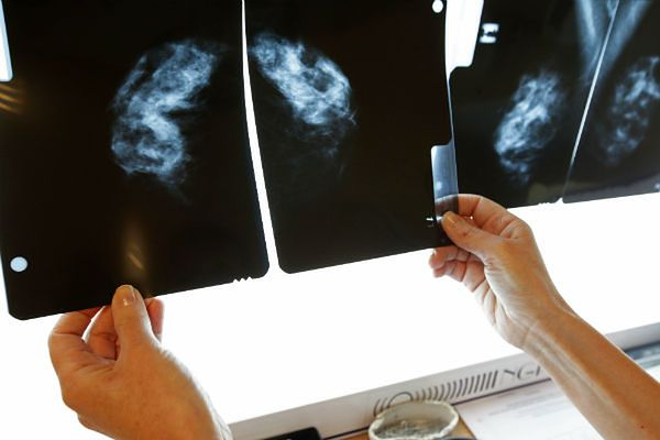 Rak piersi główną przyczyną zgonów kobiet po 35. roku życia