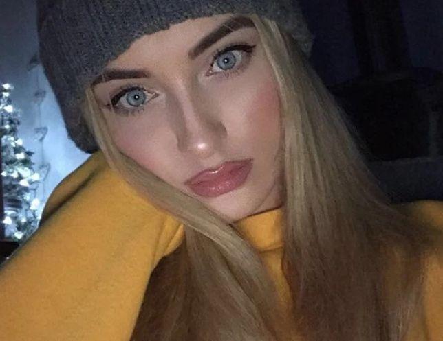 23-latka z Irlandii przeszła amputację nogi