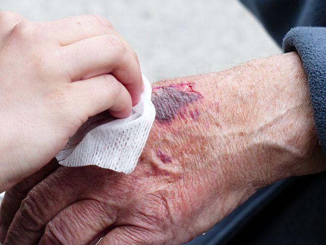 Dwie śląskie placówki rozpoczynają współpracę, by pomóc pacjentom z przewlekłymi ranami