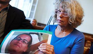 Chciała powiększyć biust przed ślubem. Ofiary nieudanych operacji plastycznych