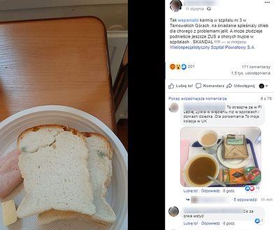Tarnowskie Góry. Pacjent szpitala dostał zapleśniały chleb