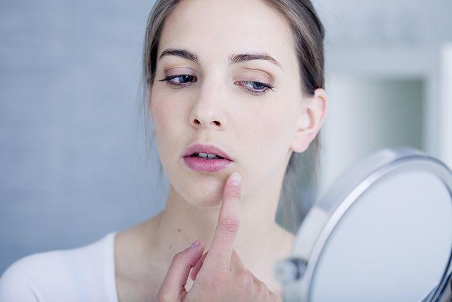 Osoby dotknięte trądzikiem różowatym często podejmują z nim nierówną walkę błędnymi metodami