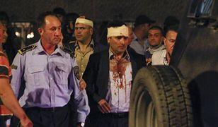 Premier Macedonii Zoran Zaew po pobiciu przez zwolenników byłego premiera Nikoli Gruewskiego