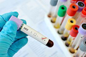 Największe mity na temat HIV - obalają eksperci