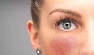 Fazy trądziku różowatego – objawy i leczenie
