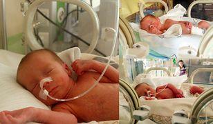 W Opolu urodziły się trojaczki. Taka ciąża zdarza się raz na 200 mln przypadków