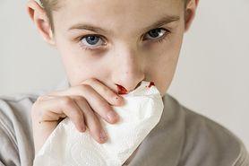 Krwotok z nosa - dlaczego nos krwawi, przyczyny krwawienia