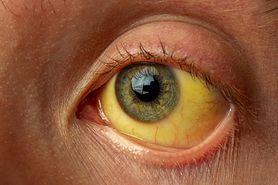 Żółtaczka - rodzaje, objawy, przyczyny, leczenie, profilaktyka
