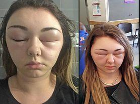 Alergia na farbę do włosów. Kobieta prawie oślepła