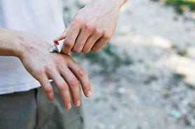 Ciągłe swędzenie skóry okazało się objawem nowotworu. Zlekceważono objawy