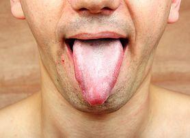 Plamki na języku – jak wyglądają i skąd się biorą?