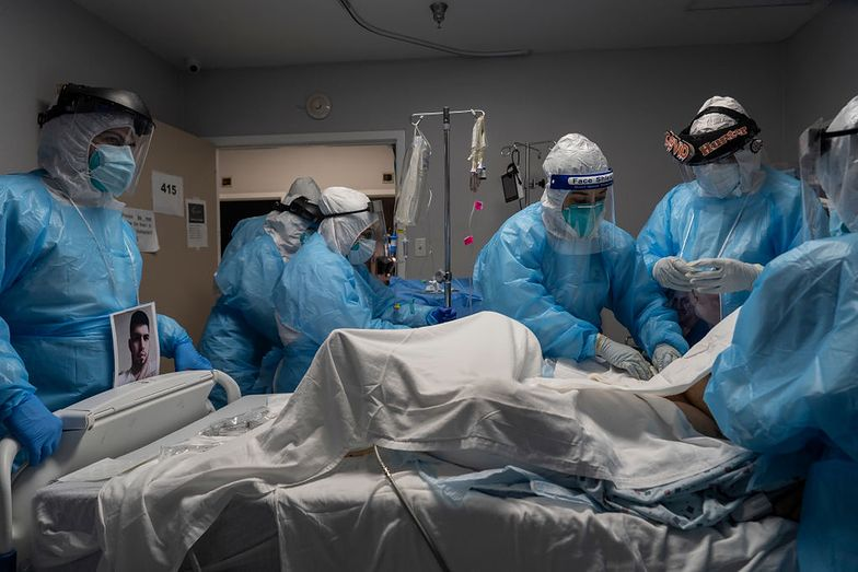 Dlaczego jedni umierają na COVID-19, a inni nie? Przełomowe odkrycie