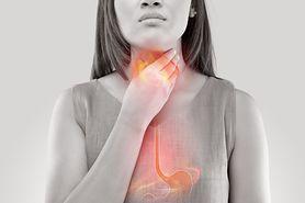 Pieczenie w klatce piersiowej - przyczyny, rozpoznanie i leczenie zgagi