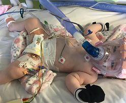 Sześciomiesięczne dziecko pokonało koronawirusa. Wcześniej chorowało na serce i płuca